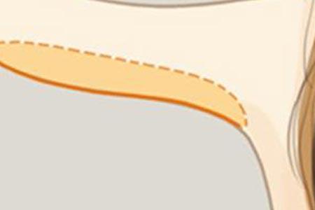 手臂抽脂手臂真的能变细吗
