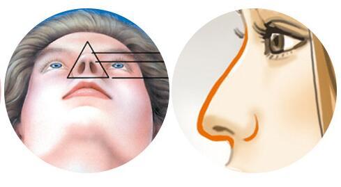 耳软骨隆鼻能保持多久