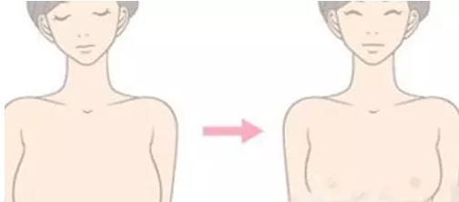 乳房下垂矫正一般多少钱