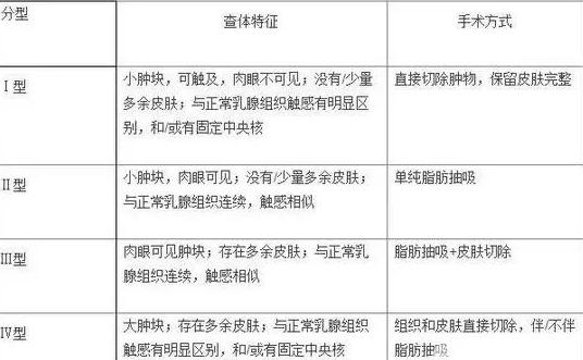 上海副乳切除价格大概是多少