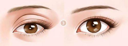 玻尿酸填充眼窝安全吗