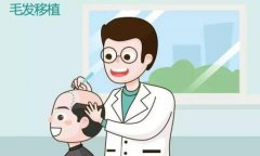 上海种植头发注意事项有哪些