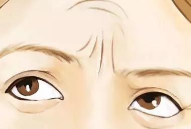 上海眉间纹去除术效果怎么样