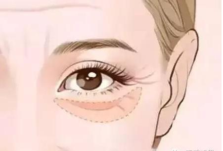 填充泪沟该选玻尿酸还是自体脂肪