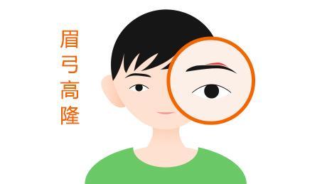 隆眉弓术的术前注意事项