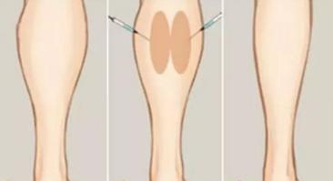 瘦腿针反弹后会更粗吗