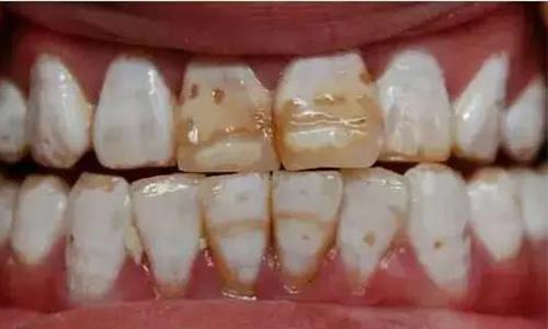 氟斑牙美白牙齿