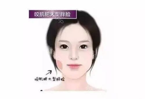 瘦脸针有什么副作用