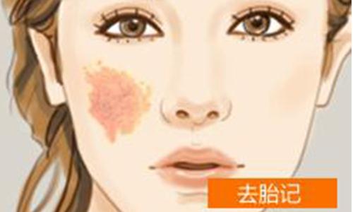 上海激光去除胎记要多少钱