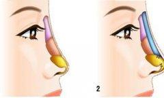 膨体隆鼻失败了怎么修复
