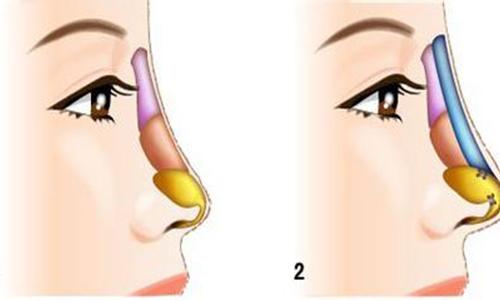 膨体隆鼻修复