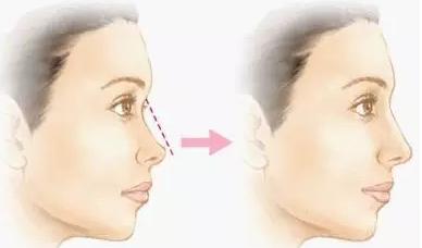 注射隆鼻能维持多久