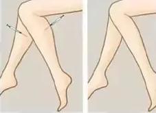 瘦脸针瘦腿能够维持多久