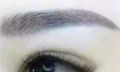 眉毛种植需要多少钱