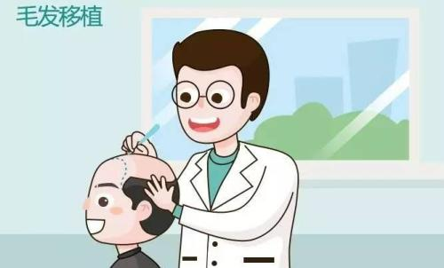 美莱毛发移植