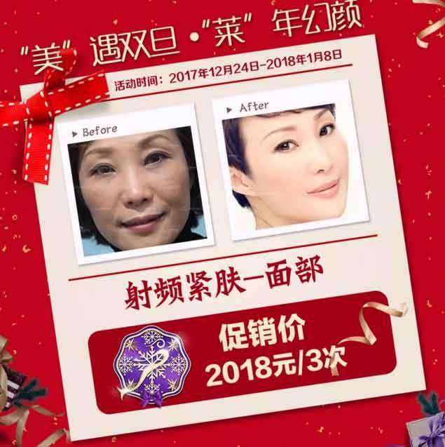"""12月30日,美肤""""魔术手""""刘红梅坐诊上海美莱"""