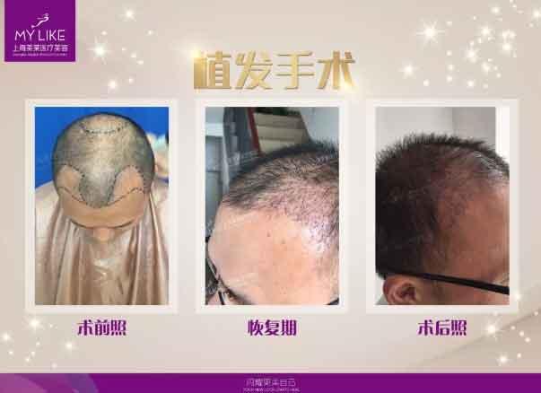 上海美莱植发真人案例