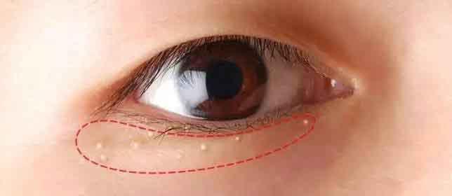 怎样去除眼睛周围长脂肪粒