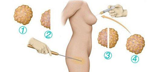 脂肪丰胸能维持多久