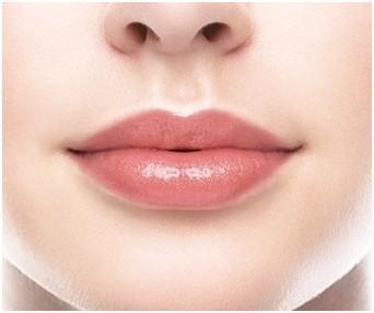 玻尿酸丰唇的效果怎么样