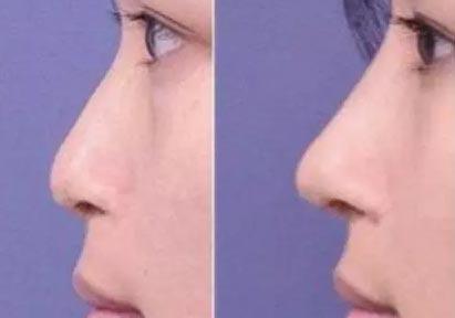 耳软骨垫鼻尖效果怎么样