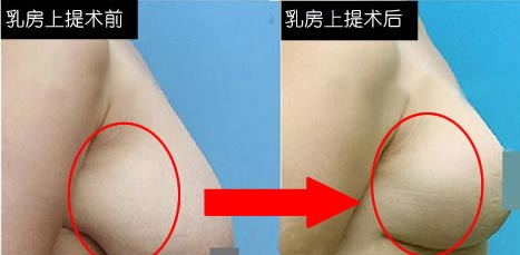 上海乳房下垂矫正要多少钱