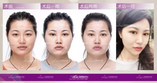 上海美莱王琳医师案例