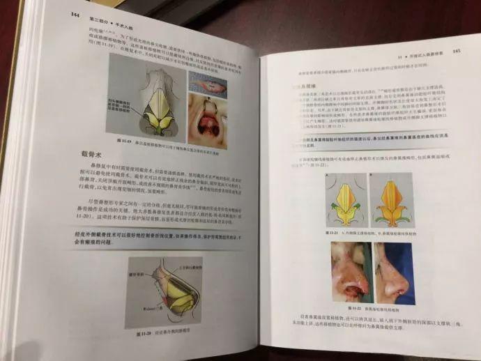 1月20号美莱隆鼻整形专家亲自面诊