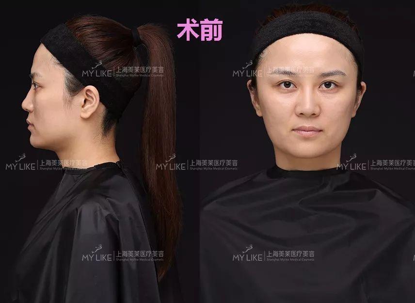 上海美莱面部玻尿酸注射真人案例
