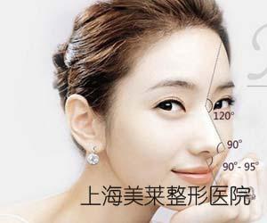 上海假体隆鼻多久都消肿