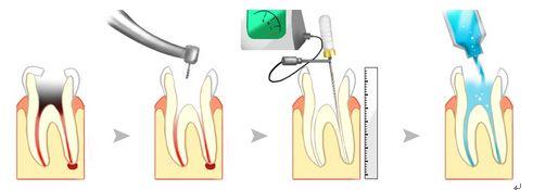 什么是牙神经?
