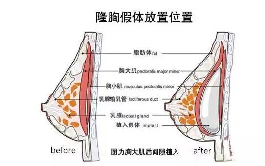上海丰胸美容医院哪家做的好