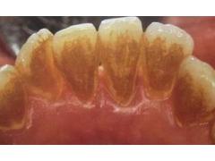 牙齿黄什么方法美白好