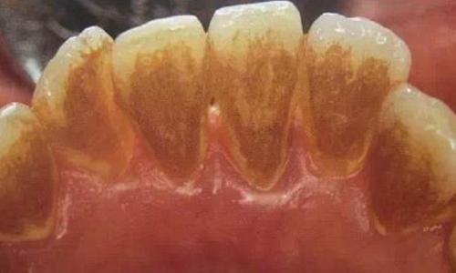 牙齿黄什么方法美白好?