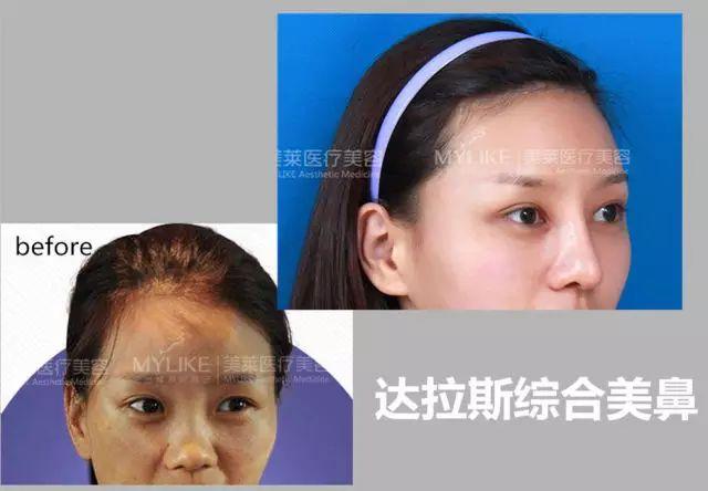 上海美莱综合隆鼻