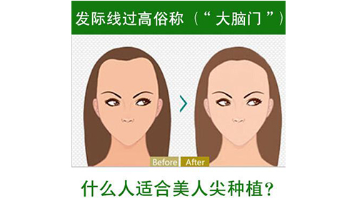 上海美莱种植发际线