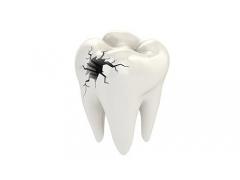 牙齿有隐裂怎么办,来美莱补牙啊