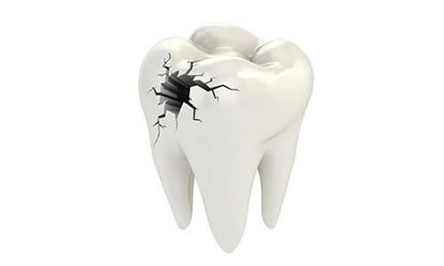 关于牙齿裂缝问题,我们请上海美莱整形医院魏东为大家介绍。