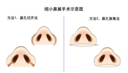 上海做缩小鼻翼手术是多少钱