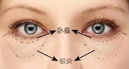 上海如何鉴别卧蚕和眼袋