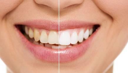 上海美莱牙贴面,亮白牙齿贴出来