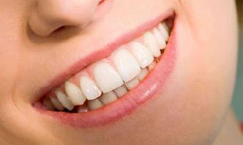 上海美莱牙贴面美白牙齿