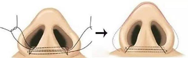 挖鼻孔导致鼻孔变大怎么办