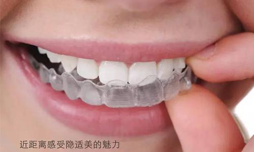 上海吗隐形牙齿矫正