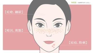 做完果酸换肤后要注意些什么