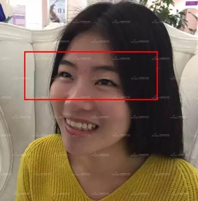 上海美莱双眼皮手术优惠价2980元