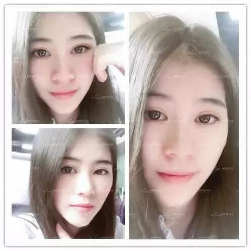 上海美莱双眼皮整形案例