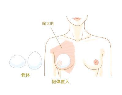 上海专业的假体丰胸医院哪家好