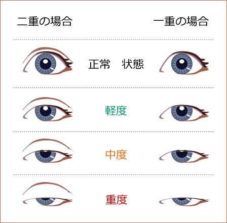 上海眼睑下垂手术怎么做