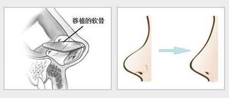 上海自体软骨隆鼻会不会有后遗症